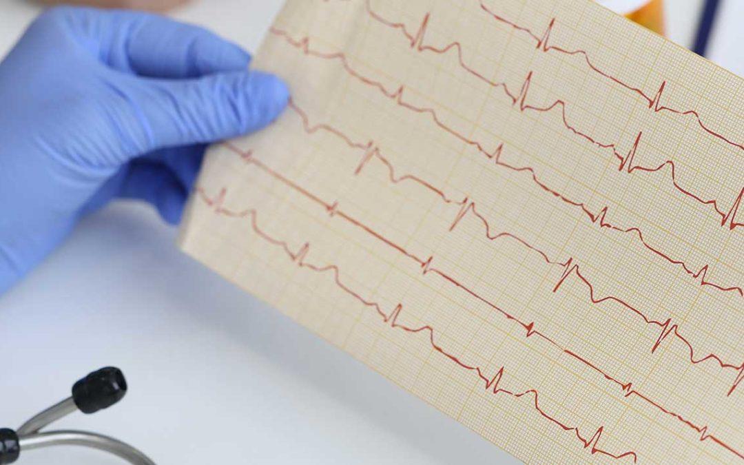 """""""Acorys"""" El dispositivo médico para localizar arritmias cardiacas. La vista del corazón desde otra perspectiva."""